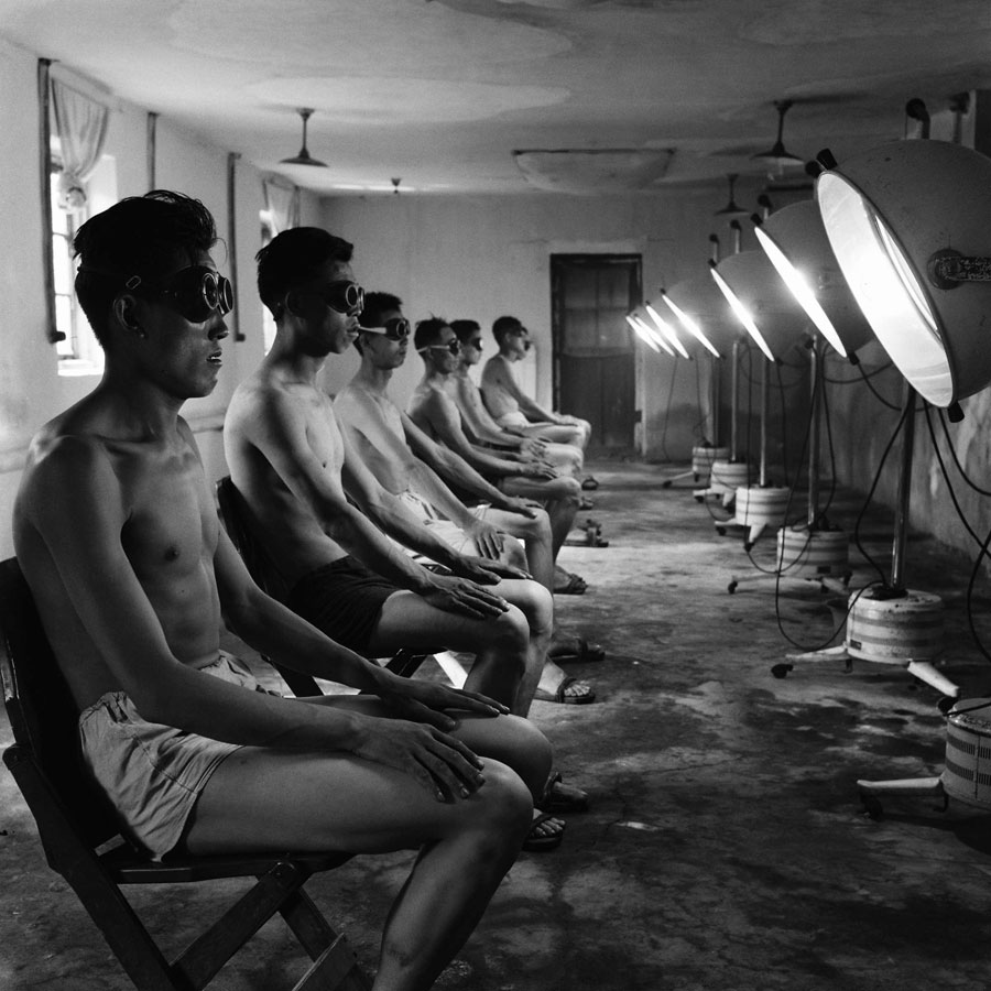 Coal Miners From Datong, Shanxi Province, Receive Doses Of UV Irradiation In November 1964. (Xinhua/Wang Chuanguo).